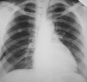 tüdőrák tünetei és kezelése