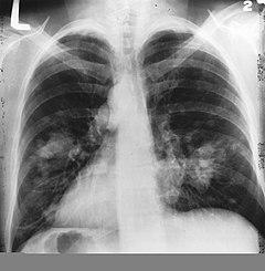 tüdőrák 4. stádium