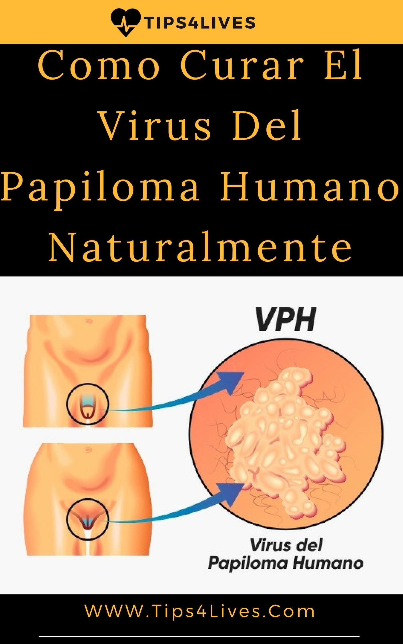 emberi papillomavírus elleni vakcina Szaúd-Arábiában