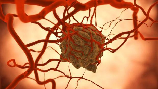 Egy ritka, de rendkívül agresszív daganat - mi az?
