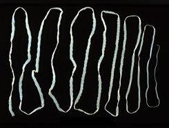 Galandféreg az emberben - III. OSZTÁLY: GALANDFÉRGEK (CESTODARIA RUD.)
