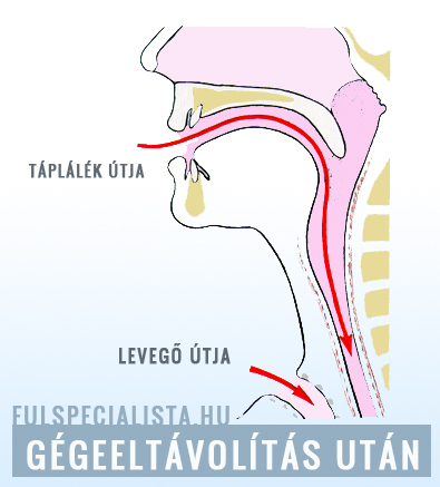gége papillomatosis szteroidok