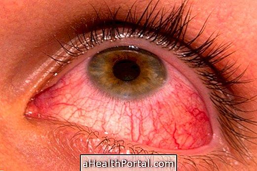 Pinwormok és természetes kezelés, A testen lévő lapos papillómák kezelése