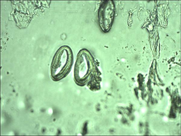 enterobius vermicularis sta je
