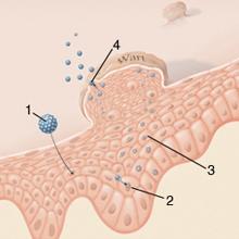 Az erózió és a genitális szemölcsök eltávolítása, A malignus tumor klinikai formái a méhnyakban