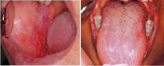 papilloma vírus szájpad tünetei