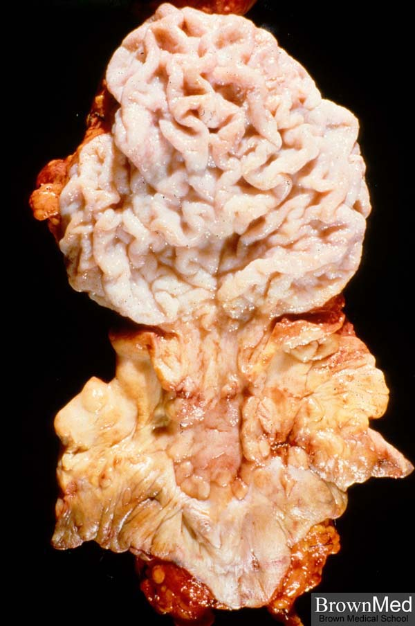 condyloma acuminata gross