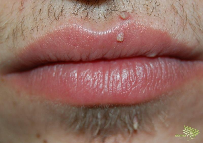 condyloma és fertőzés