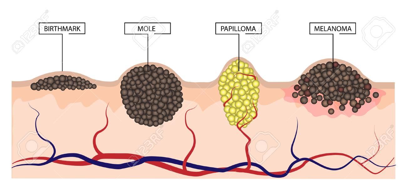 papillomas mole papillomatosis rák meghatározása