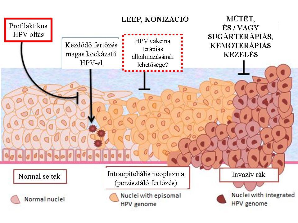 Hólyag falának megvastagodása - Pikkelyes papilloma hólyag patológiája