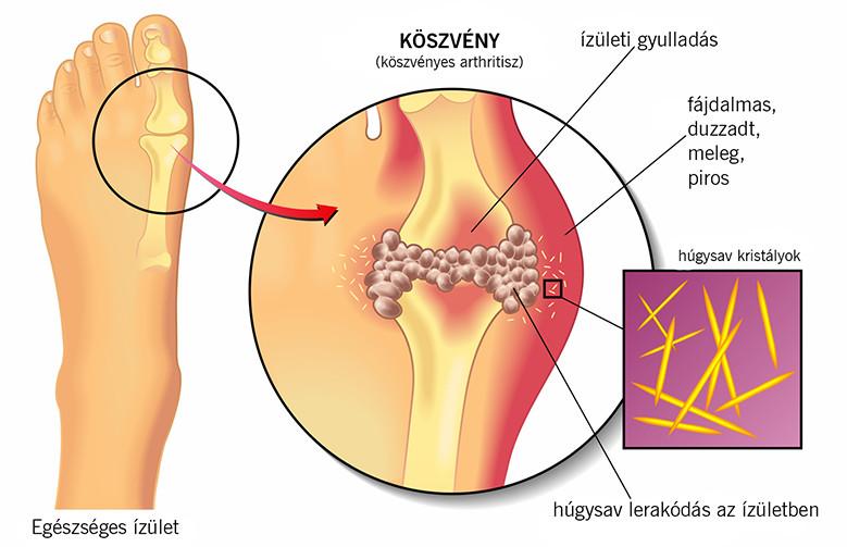 Májmétely kezelése házilag – Betonszerkezetek - Fascioliasis diagnosztizálása és megelőzése
