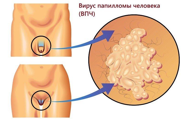 papilloma hangterápia hpv magas kockázatú behandlung