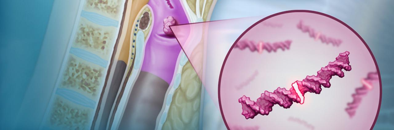 hogyan lehet gyógyítani az emberi papillomavírust endometrium rák PCOS-ban