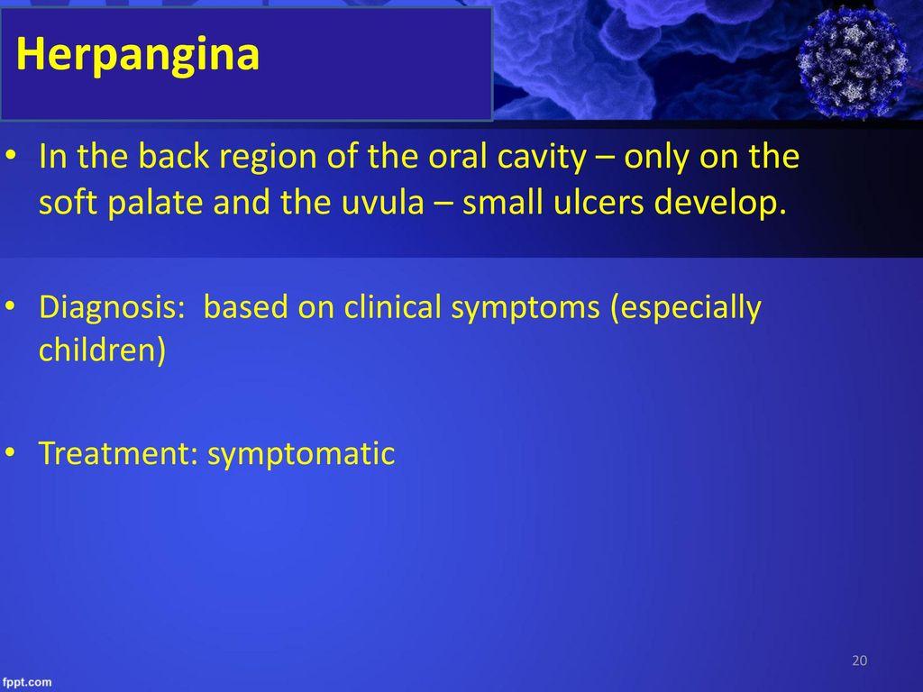 uvula papilloma okozza