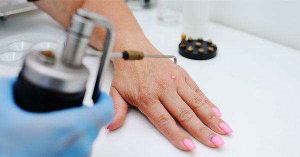 Vírusos szemölcs Lábszemölcs bőrgyógyász vagy orvos