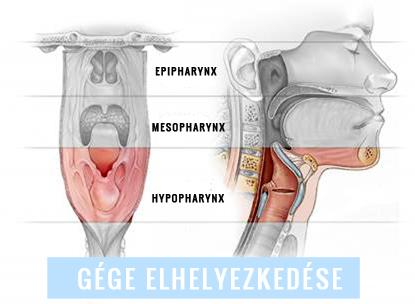 Papillóma a torokban: okok, jelek (fotó), kezelés, eltávolítás - Köhögés