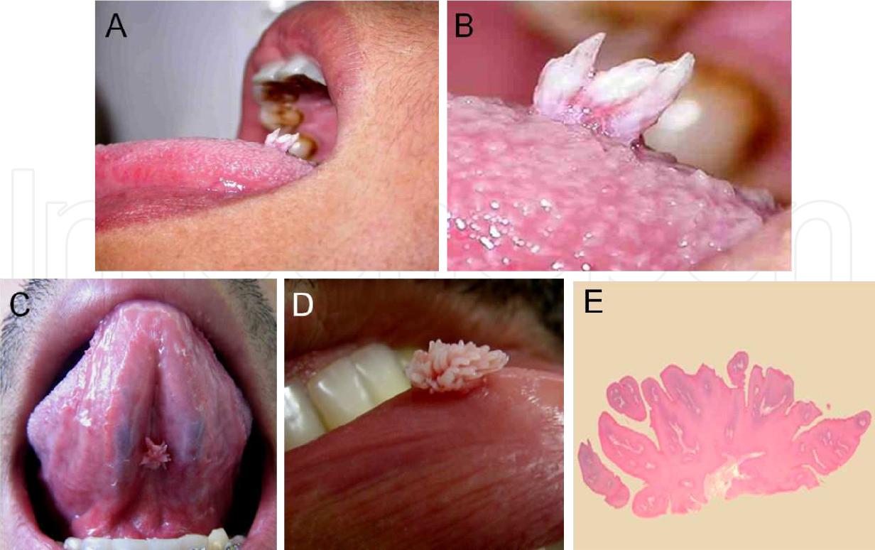 Human papilloma kezelese, Analiza giardia copii Papilloma gyogyitasa