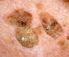 intraductalis papillómák és a rák kockázata)