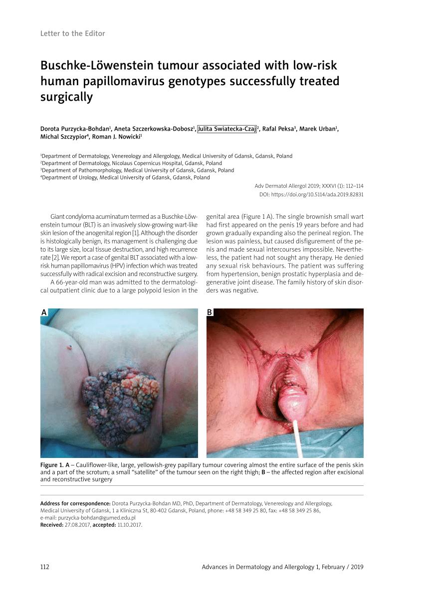 a condyloma polipok kontrasztja