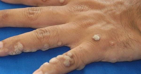 papillomavírus mst kezelés