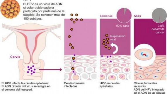 hpv vírus természetes kezelése