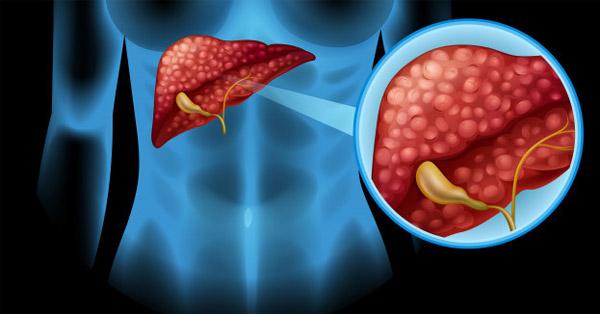 Ütésnek nem, de az életmódnak lehet következménye mellrák