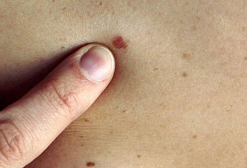 bőrrák első tünetei
