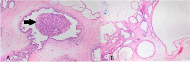összefolyó és retikulált papillomatosis hisztopatológia emberi papillomavírus fertőzés hiánya