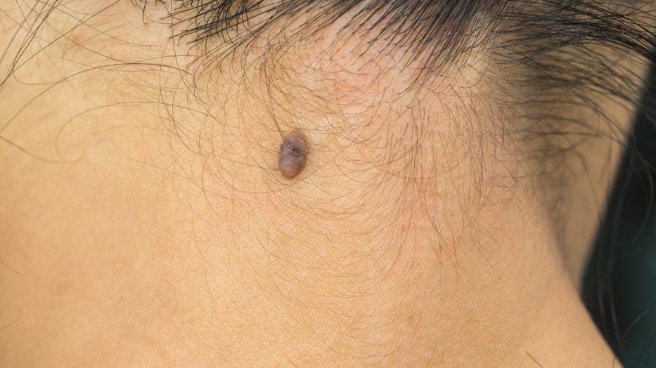hogy néznek ki a pinworm nőstények fájdalmas szemölcsök