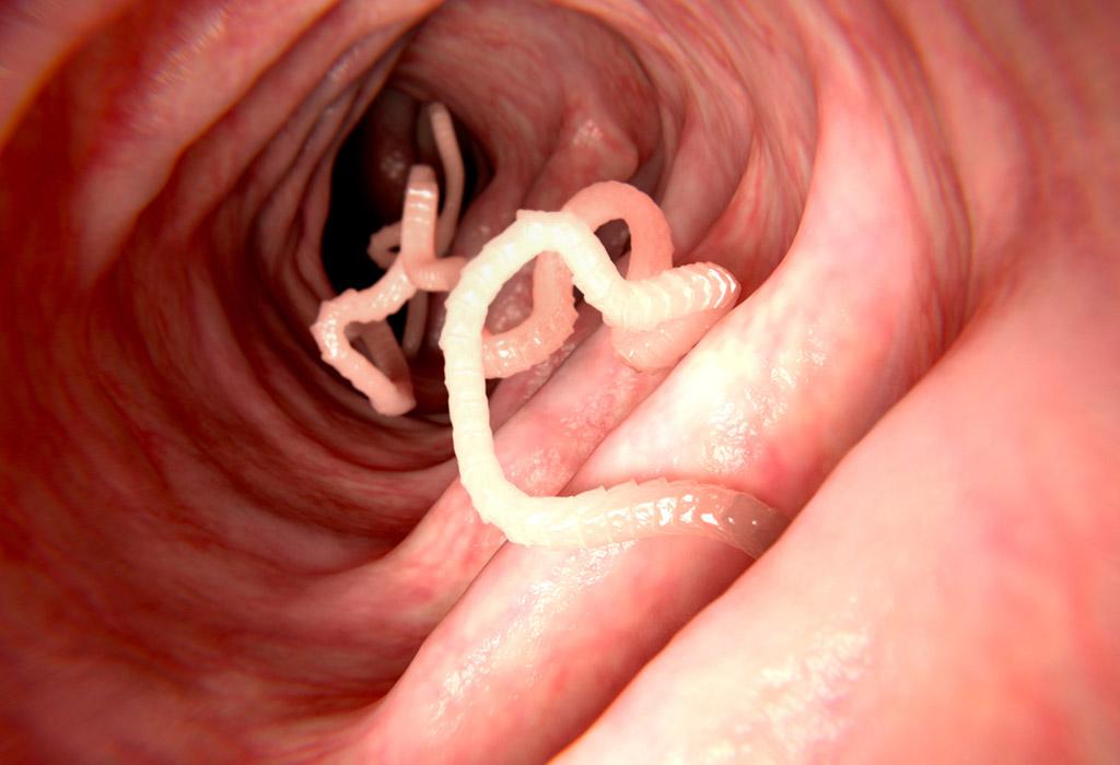 daganatok parazitákkal történő kezelése