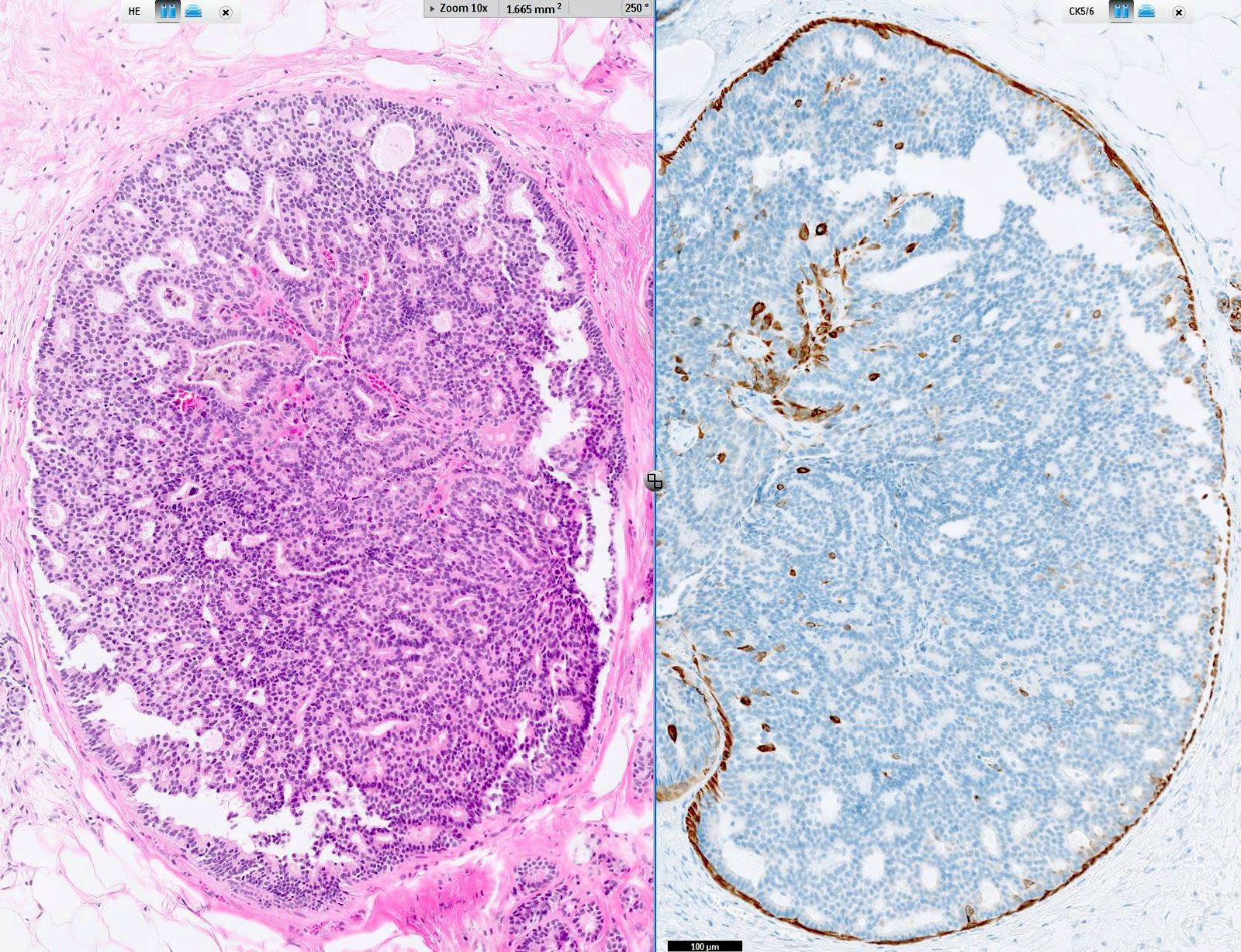 ductalis papilloma hyperplasia