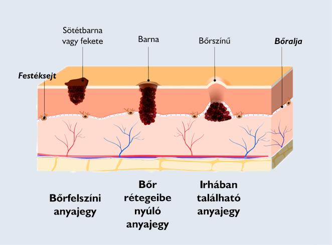 nevi, hemangioma, papilloma, szemölcs, szemölcs eltávolítása