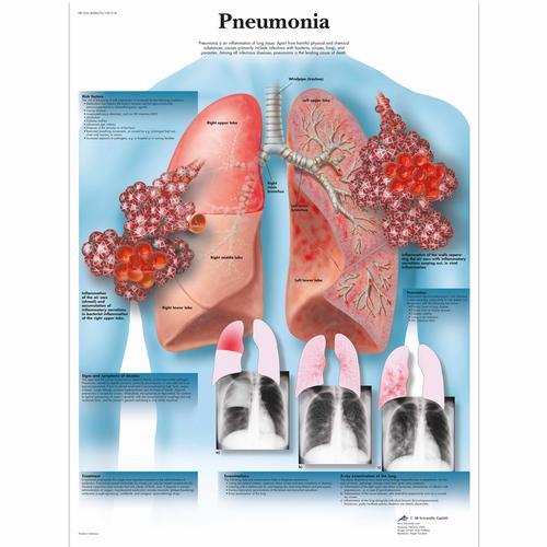 Mennyi daganatot váltanak ki a krónikus fertőzések? | szoboszlosound.hu