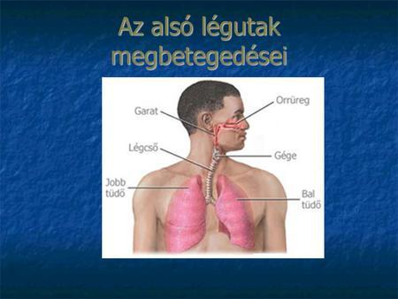 légcső daganatok papilloma