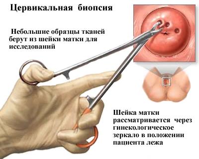emberi papillomavírus bőrelváltozásai)