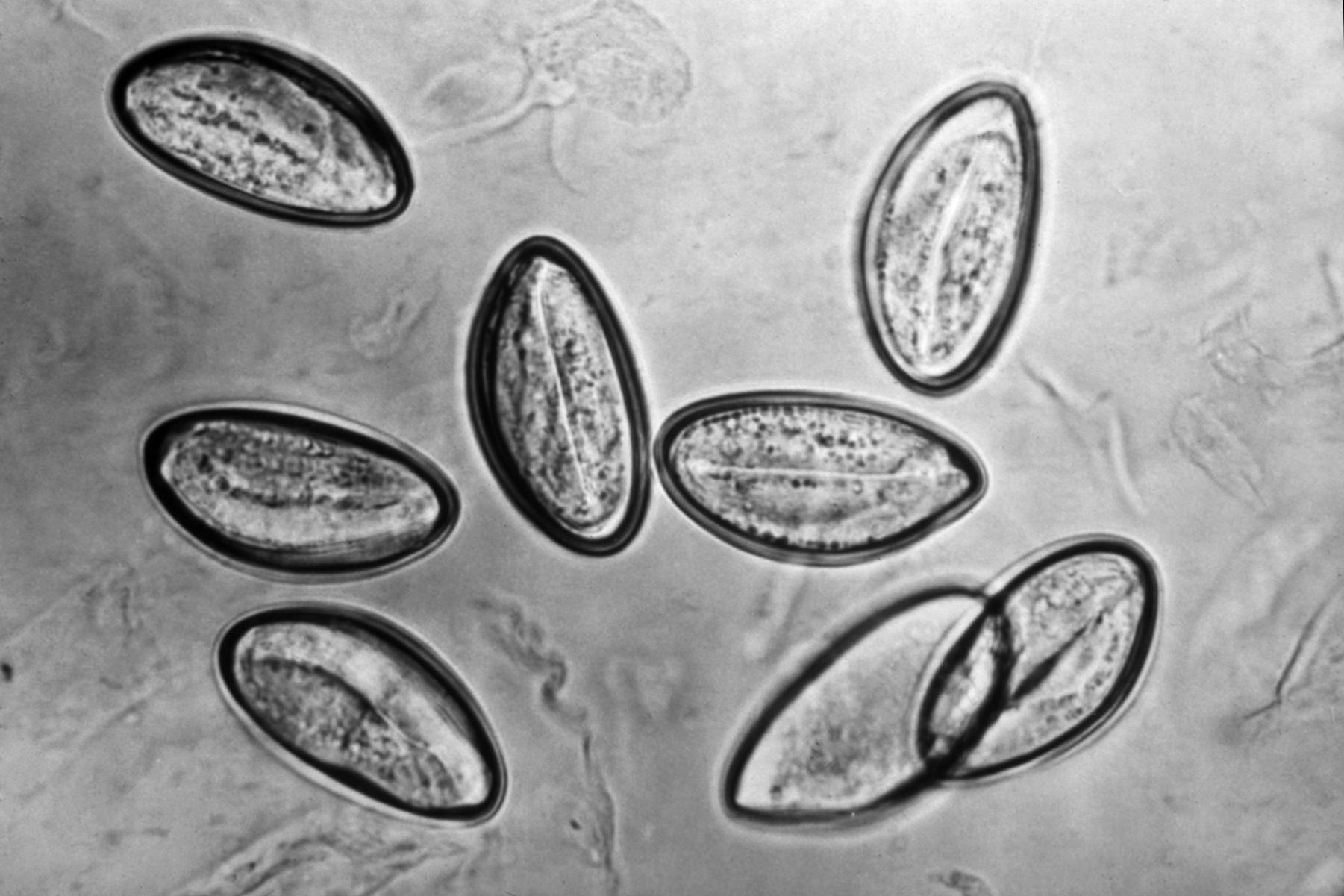 enterobius vermicularis terjedési forma