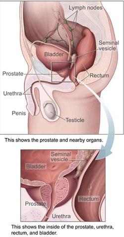 A prosztatarák tünetei