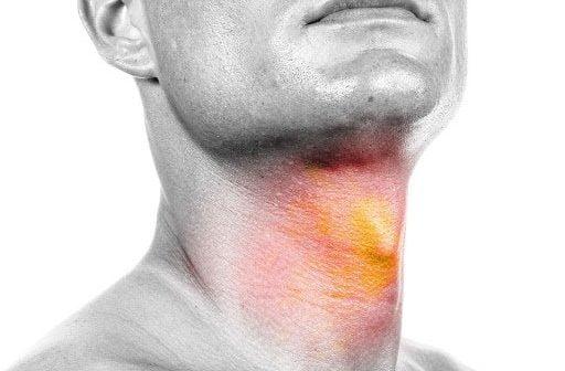 férfi nyaki rák