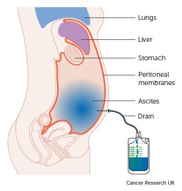hashártya rák brca1 paraziták az emberi izmokban