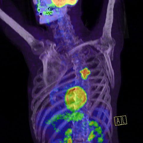 Onkológiai diagnosztika