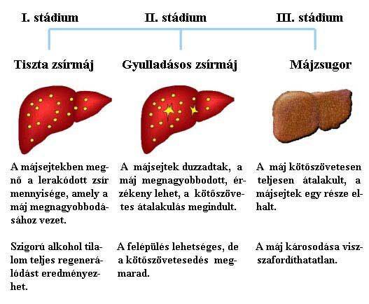 májrák hepatitis