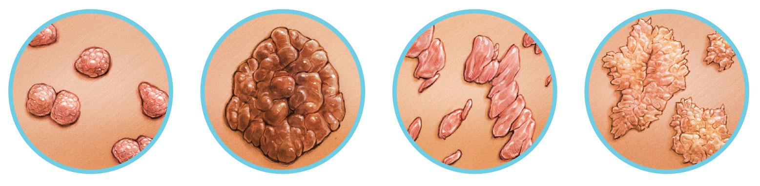szemölcsök tünetei a nemi szemölcsök végbélnyílásában papillomavírus kezelése