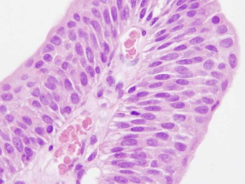 papilloma definíció patológiája