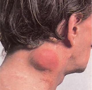 Limfóma: ezekre a tünetekre érdemes figyelni, mert daganatot jelezhetnek