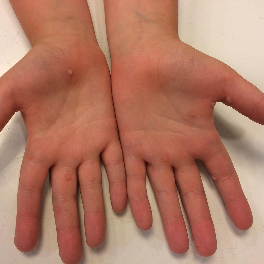 szemölcsök a kezén fekete foltok aki kinoki tapaszokat használt