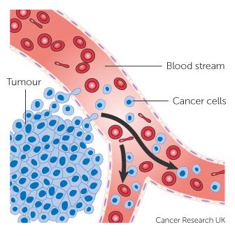 szinoviális rák szarkóma hogyan robbant fel a vastagbél otthon