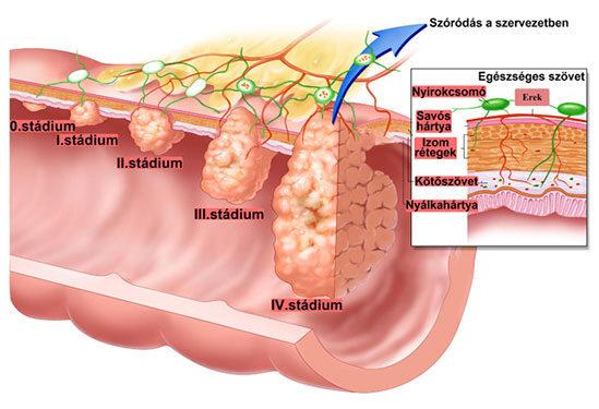 vastagbélrák a nők tüneteiben